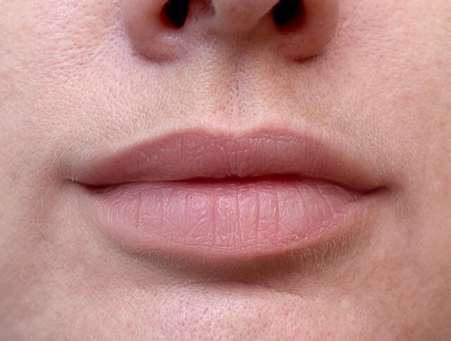 Lip filler before & after, patient after lip injections 04, normal size