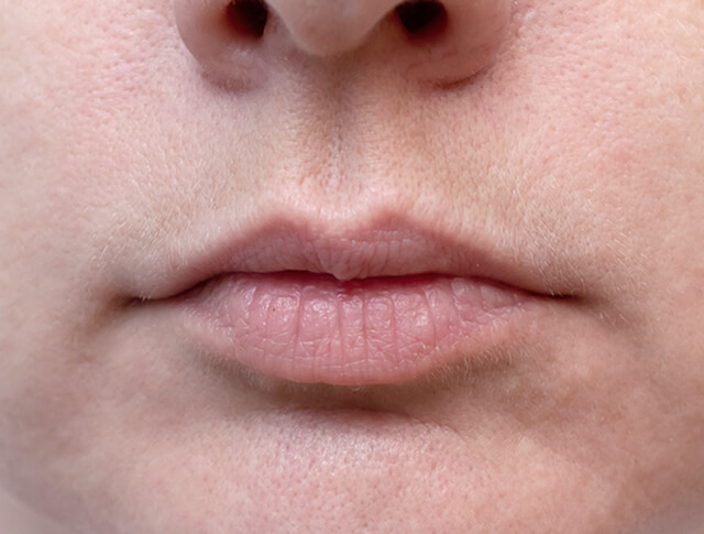 Lip filler before & after, patient before lip injections 04, normal size