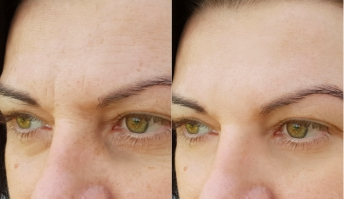 Anti-wrinkle injections results, patient before and after, image 03
