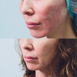 Female patient before and after facial thread lift with Dr Saber, image 01