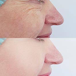 Facial thread lift patient before and after, image 02