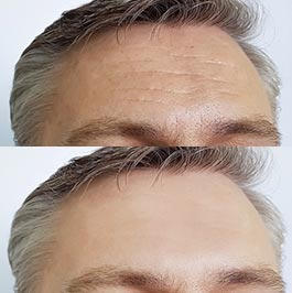 Patient before and after thread lift at Dr Saber clinic, image 03