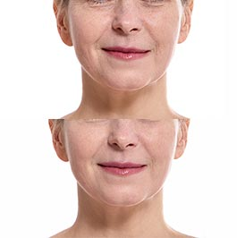Facial thread lift before and after, Dr Saber clinic Werribee, Melbourne, image 04