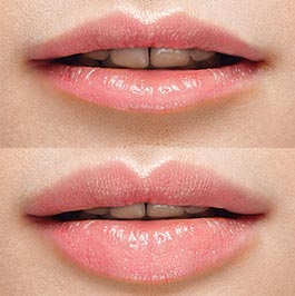 Lip injections gallery, patient before & after, image 01