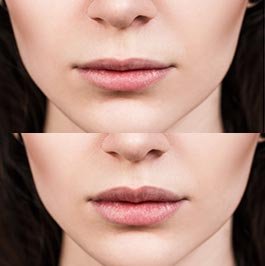 Lip fillers before and after, image 02