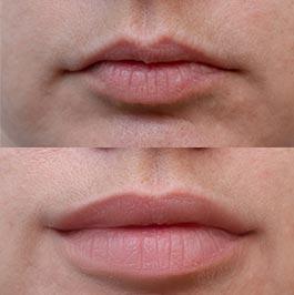Lip fillers gallery, Dr Saber, before & after, image 04