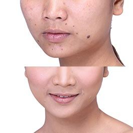 Facial mole removal, before & after, image 02