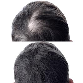PRP treatment for hair loss, Dr Saber, before & after, image 01