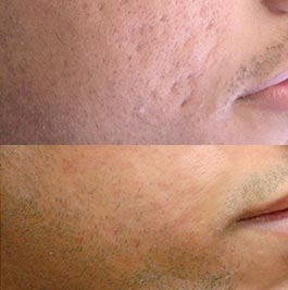 Male patient before and after PRP therapy for skin, Dr Saber clinic Werribee, image 02