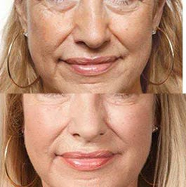 PRP therapy for wrinkles at Dr Saber clinic, image 03, before & after