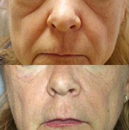 PRP therapy for lines, patient before and after, image 04