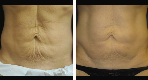 SkinTyte to abdomen, photo 07, before & after gallery