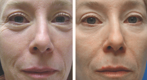 SkinTyte to face, photo 09, before and after