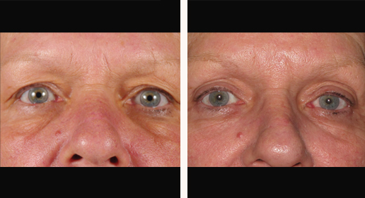 SkinTyte to face, before and after, image 10
