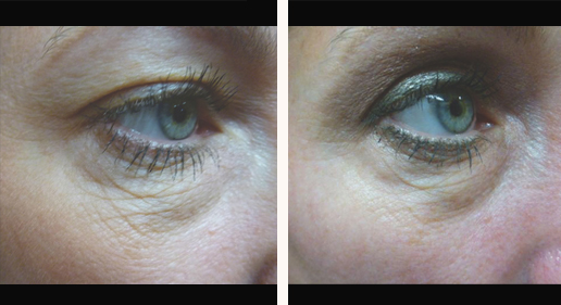 SkinTyte around eyes, before & after gallery, image 11, closeup image