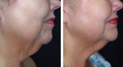 Patient before & after SkinTyte, image 12, neck & face, side view