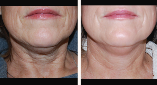 SkinTyte before & after, image 13, neck area