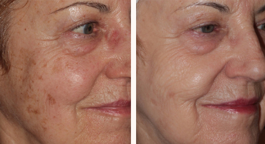 Patient before and after BBL forever young treatment at Dr Saber clinic, photo 04