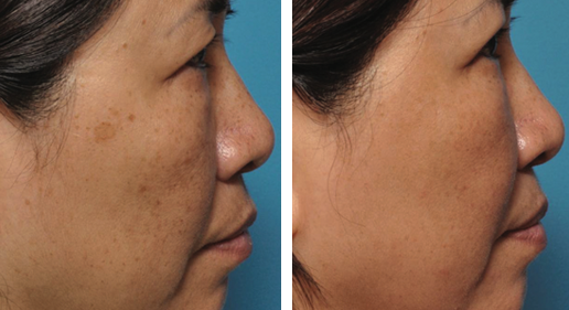 Patient before and after BBL & Halo treatment, female, face, side view, photo 10