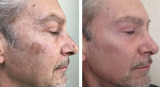 Male patient before & after, BBL & Halo treatment gallery, photo 09, face, side view