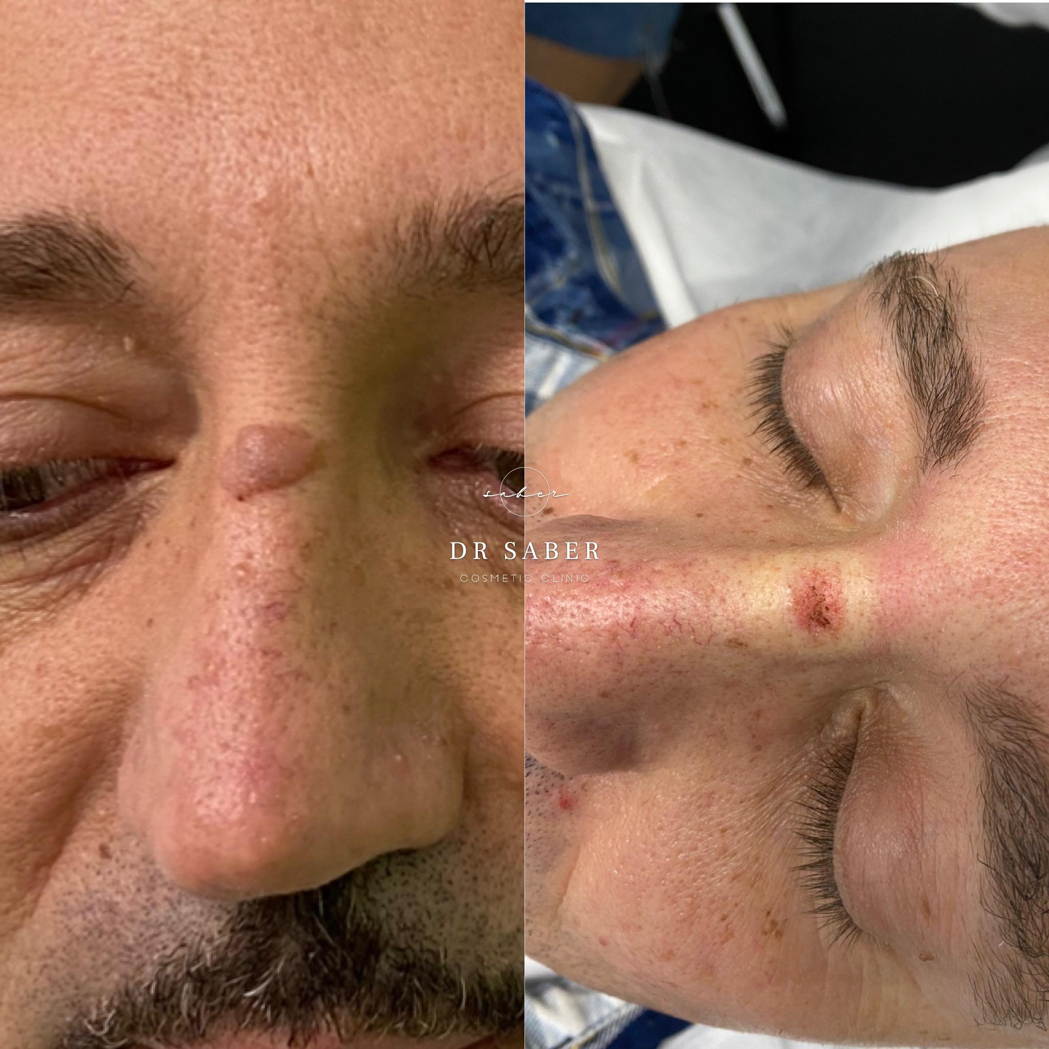 Mole Lesion Removal
