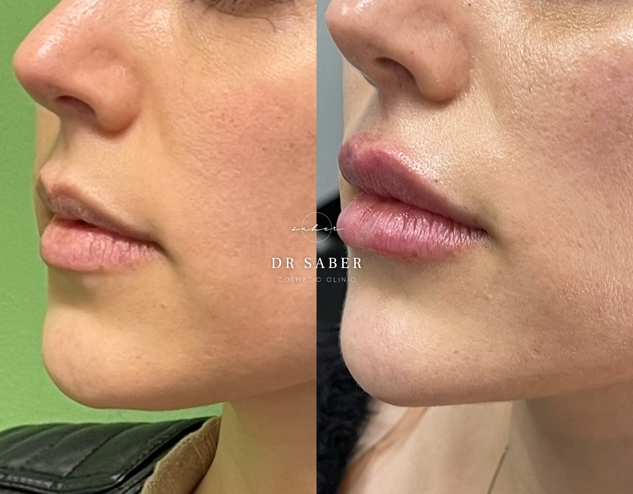 Lip Filler Plus Jawline
